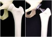 Natural and replacement hip comparison